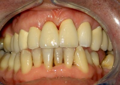 Tooth compression and prosthetic care