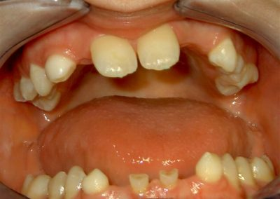 Implant prosthetic care for hypodontia