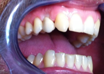 Implant prosthetic care for missing one tooth
