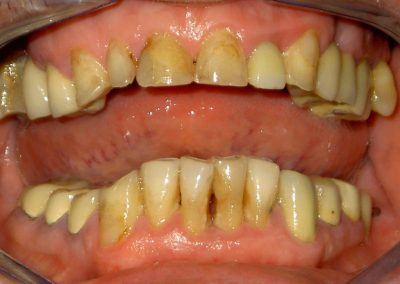 Complete prosthetic dental rehabilitation